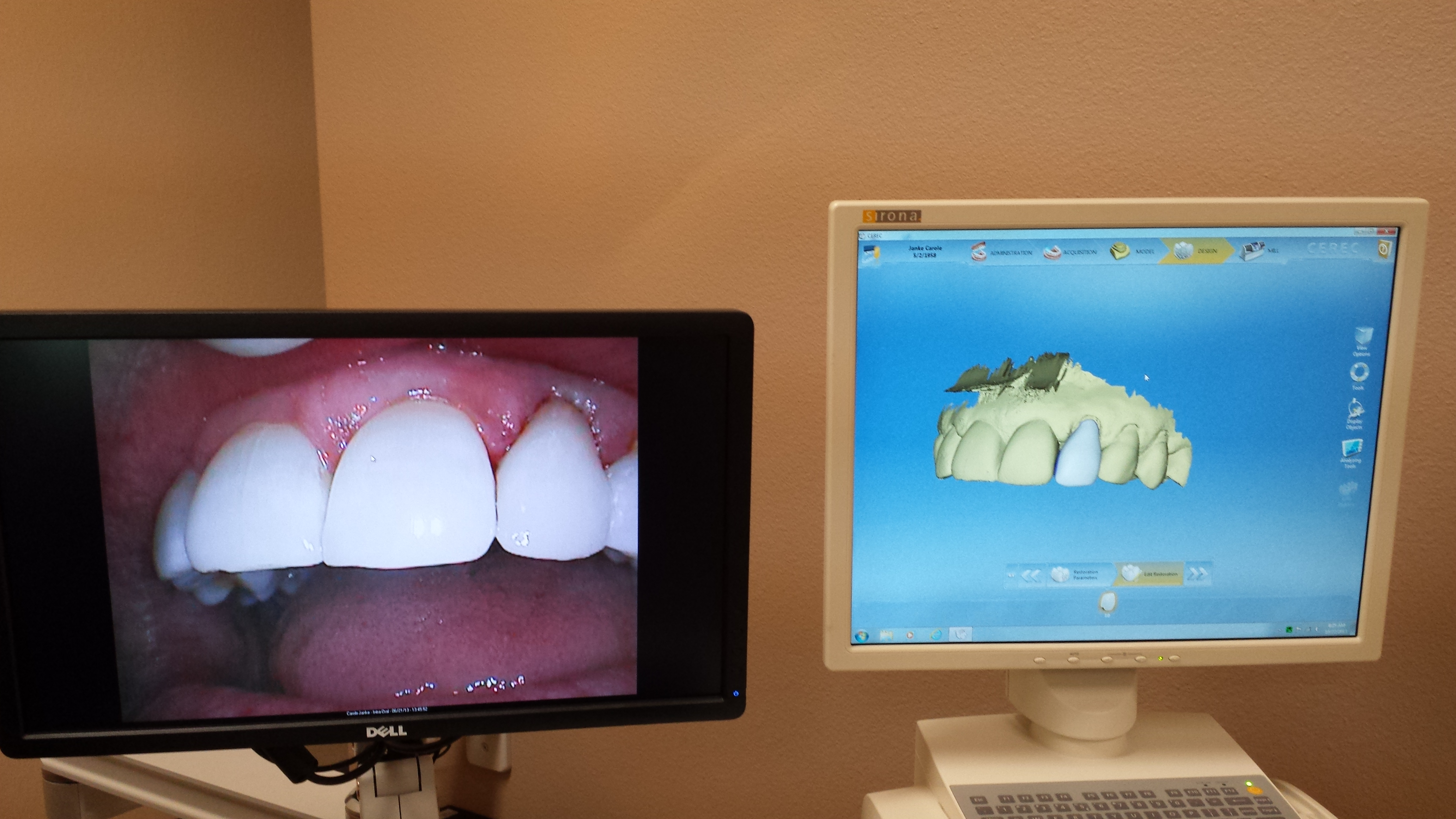 Cerec Same Visit Crown- patient receives permanent crown on the same visit.  No more second visit, no more temporary crown.